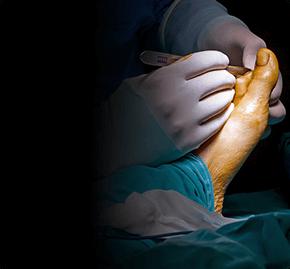 Хирургия стопы