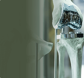 Эндопротезирование суставов