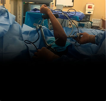 Артроскопия локтевого сустава. Мифы и реальность