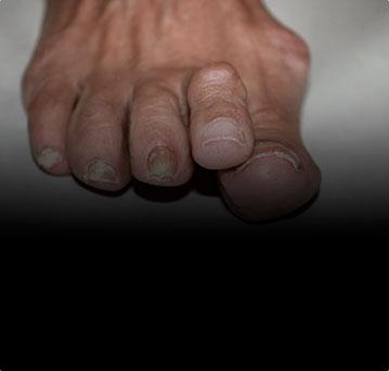 Искривление малых пальцев