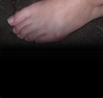 Деформация пятого пальца стопы (деформация Тейлора)
