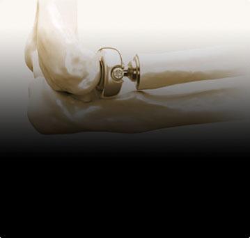 Эндопротезирование головки лучевой кости