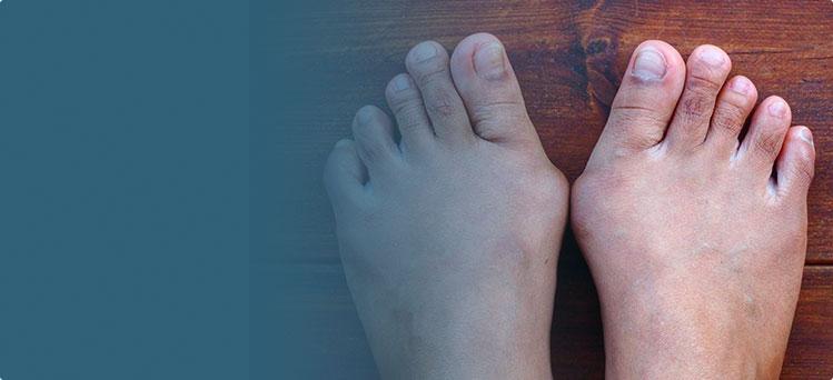 Вальгусная деформация первого пальца стопы (Hallux Valgus)
