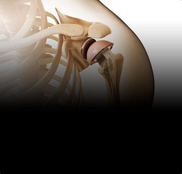 Хирургия плечевого сустава. Инновации в эндопротезировании