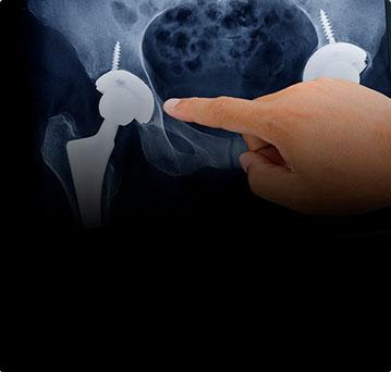 Инновационный метод эндопротезирования суставов. Это реальность