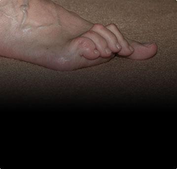 Молоткообразная деформация пальцев стоп