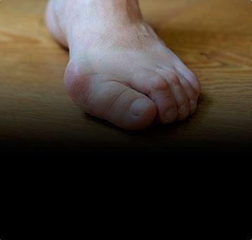 Проблемы с большим пальцем стопы. Как мы можем вам помочь?