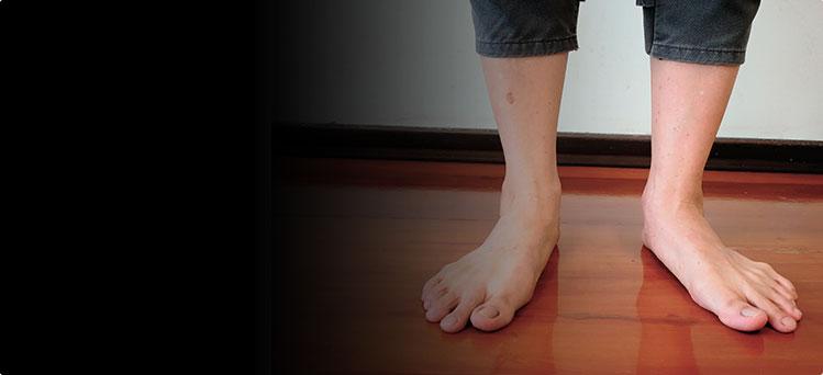 Плоско-вальгусная стопа, дисфункция сухожилия задней большеберцовой мышцы, продольное плоскостопие