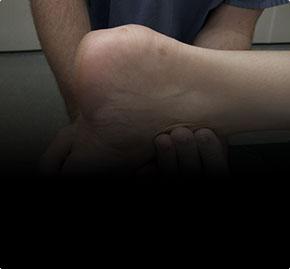 Тендинит ахиллова сухожилия. Ахиллобурсит. Болезнь Хаглунда