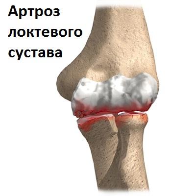artroza provoacă tratamentul simptomelor antecedente medicale reumatologie osteoartroza genunchiului