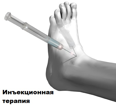Эндопротезирование голеностопного сустава: отзывы о замене голеностопного сустава, протезирование по квоте, эндопротезы