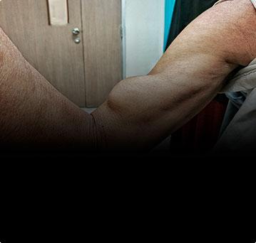 Разрыв сухожилия двуглавой мышцы на уровне плечевого сустава