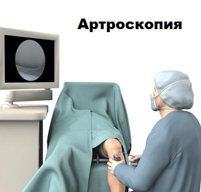 Патология синовиальных складок коленного сустава thumbnail
