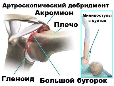 Деформирующий артроз плечевого сустава Травматология и ортопедия