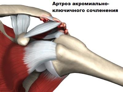 Разрыв ротаторной манжеты плечевого сустава thumbnail