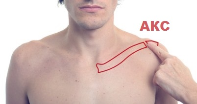 Что такое артроз акс