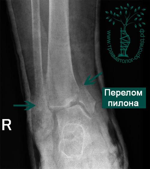 Переломы дистального отдела большеберцовой кости