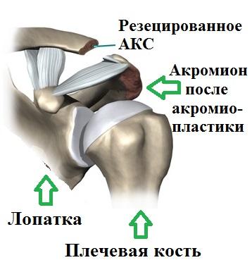 Артроз акромиально ключичный сустав операция thumbnail