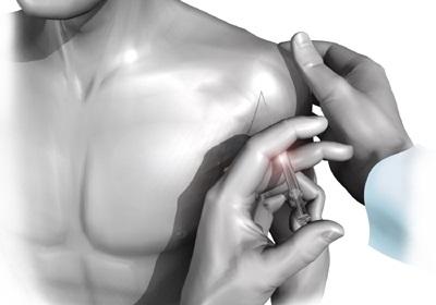 Разрыв ротаторной манжеты плечевого сустава