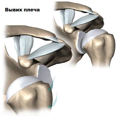 Операция привычный вывих плеча – Операция при привычном вывихе плеча: виды вмешательства, реабилитация