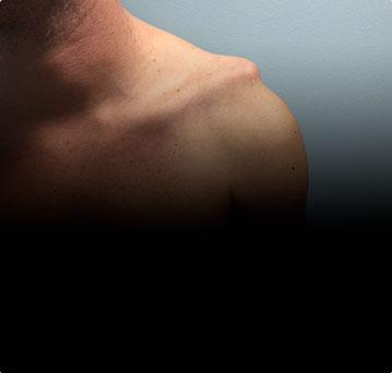 Вывих ключицы. Повреждение АКС. Современный малотравматичный метод лечения