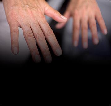 Повреждения сухожилий кисти