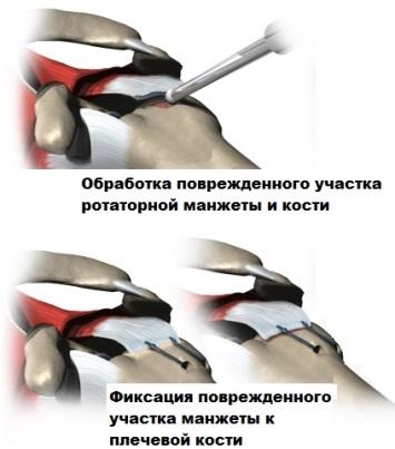 Остеонекроз плечевого сустава