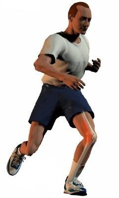 Патология синовиальных складок коленного сустава