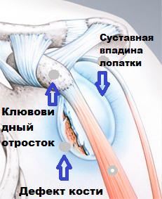 Разрыв губы плечевого сустава