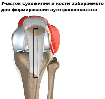 Что такое пкс коленного сустава