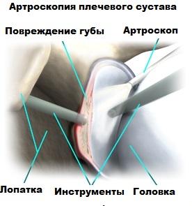 Разрыв суставной губы