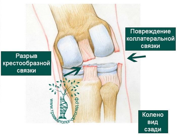 как лечить повреждение суставов