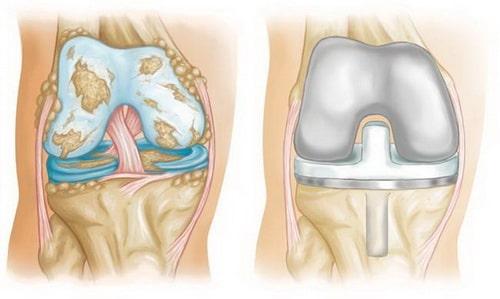 Виды протезов коленного сустава