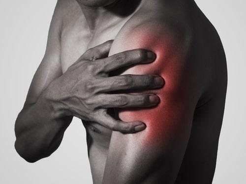Субакромиальный импинджмент синдром плечевого сустава лечение