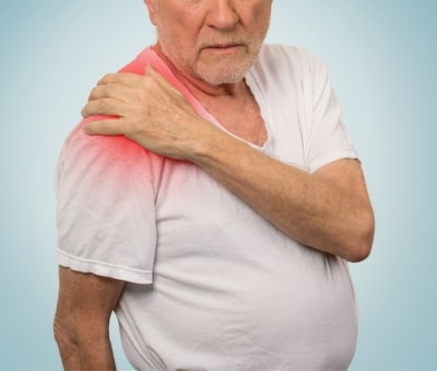 Частичное повреждение сухожилия надостной мышцы плечевого сустава