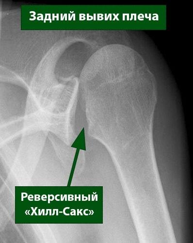 Плечевой сустав вывих рентген thumbnail
