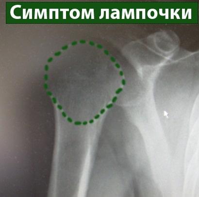 Плечевой сустав вывих рентген