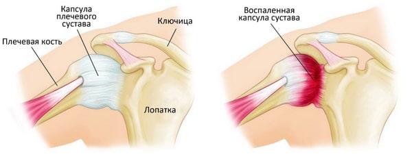 Снижение подвижности плечевого сустава