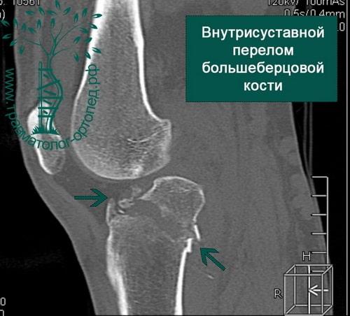 Внутрисуставной перелом большеберцовой кости коленный сустав thumbnail