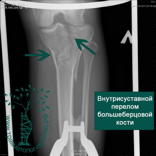 Внутрисуставной перелом большеберцовой кости коленный сустав