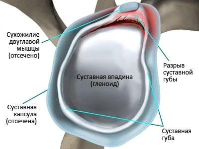 Хрящевая губа плечевого сустава лечение thumbnail