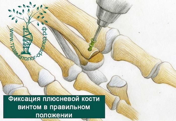 фиксация кости винтом