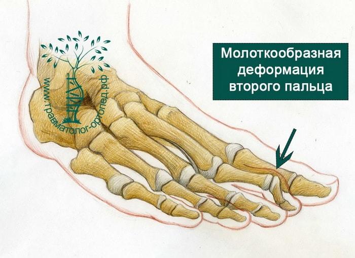 молоткообразное искривление пальца