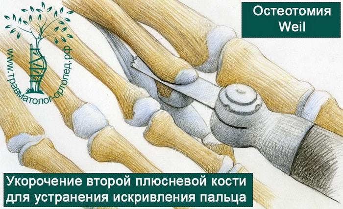 остеотомия второй плюсневой кости