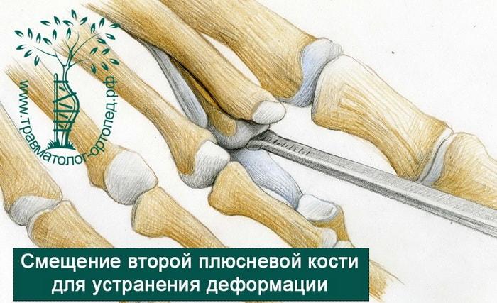 устранение деформации пальца стопы