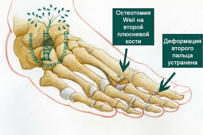Устранение молоткообразной деформации второго пальца ноги